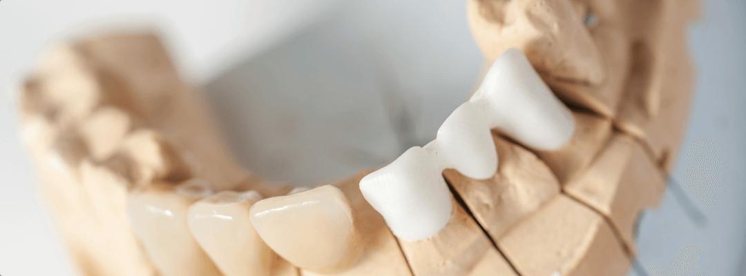 Протезы или импланты два способа восстановить утраченный зуб