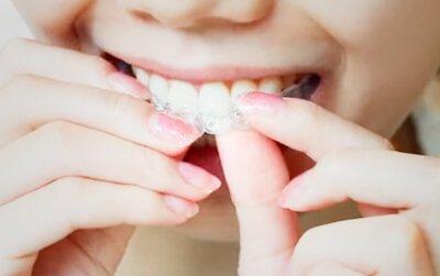 каппа для отбеливания зубов купить в аптеке